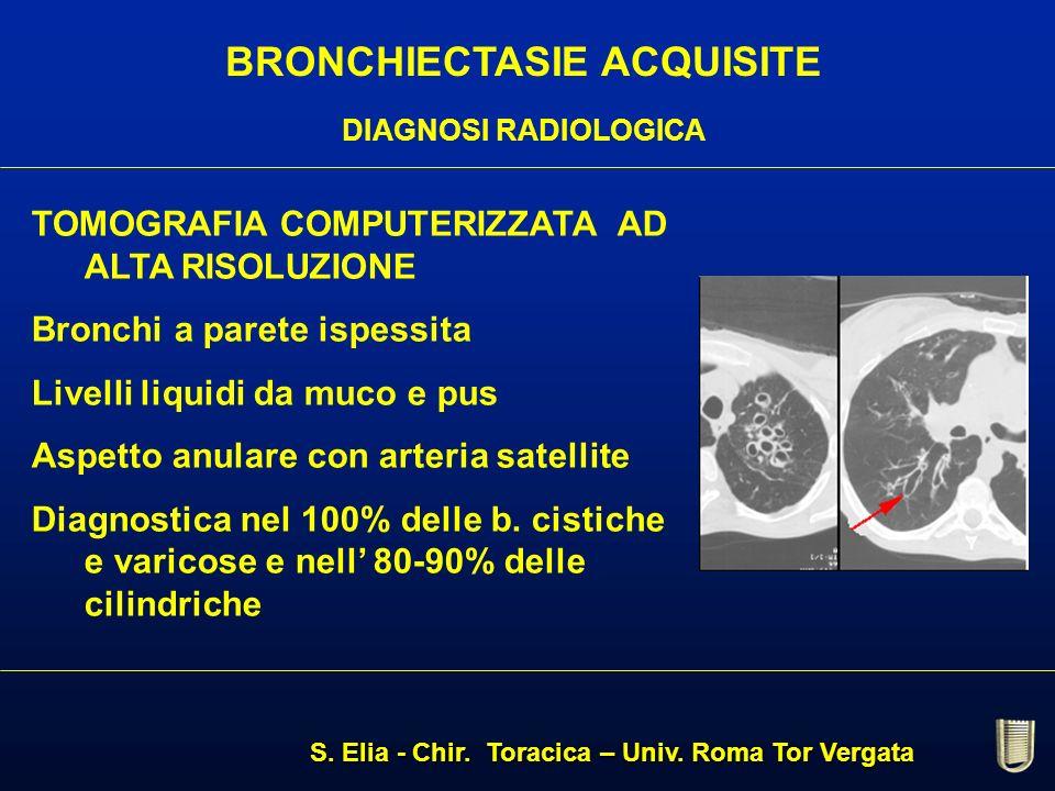 BRONCHIECTASIE ACQUISITE DIAGNOSI RADIOLOGICA TOMOGRAFIA COMPUTERIZZATA AD ALTA RISOLUZIONE Bronchi a parete ispessita Livelli liquidi da muco e pus A