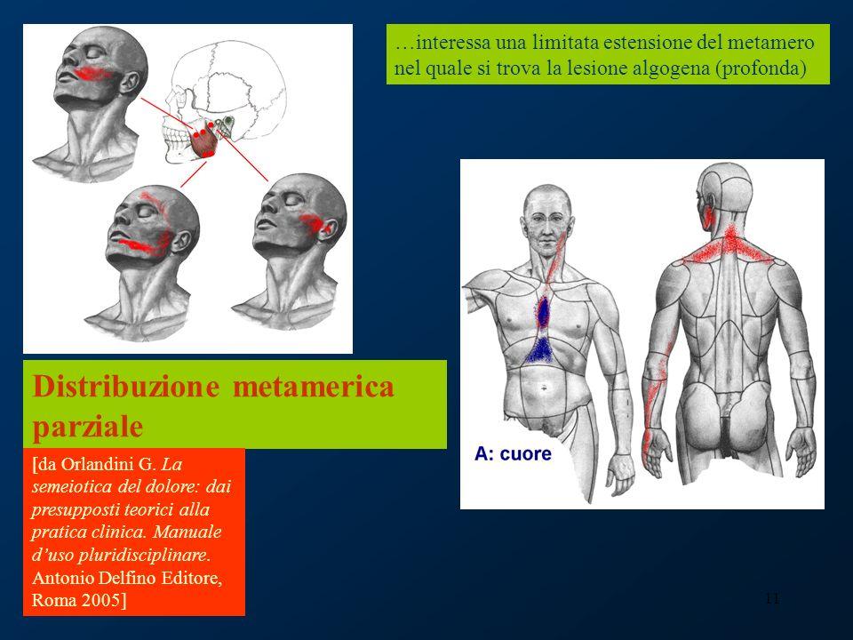 11 Distribuzione metamerica parziale …interessa una limitata estensione del metamero nel quale si trova la lesione algogena (profonda) [da Orlandini G