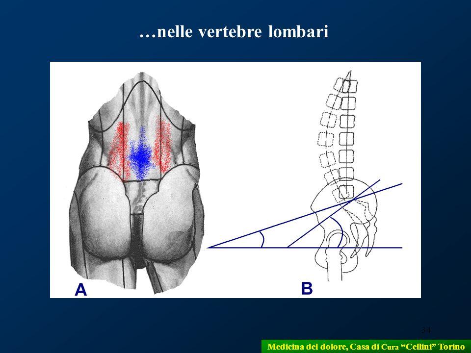 34 …nelle vertebre lombari Medicina del dolore, Casa di Cura Cellini Torino