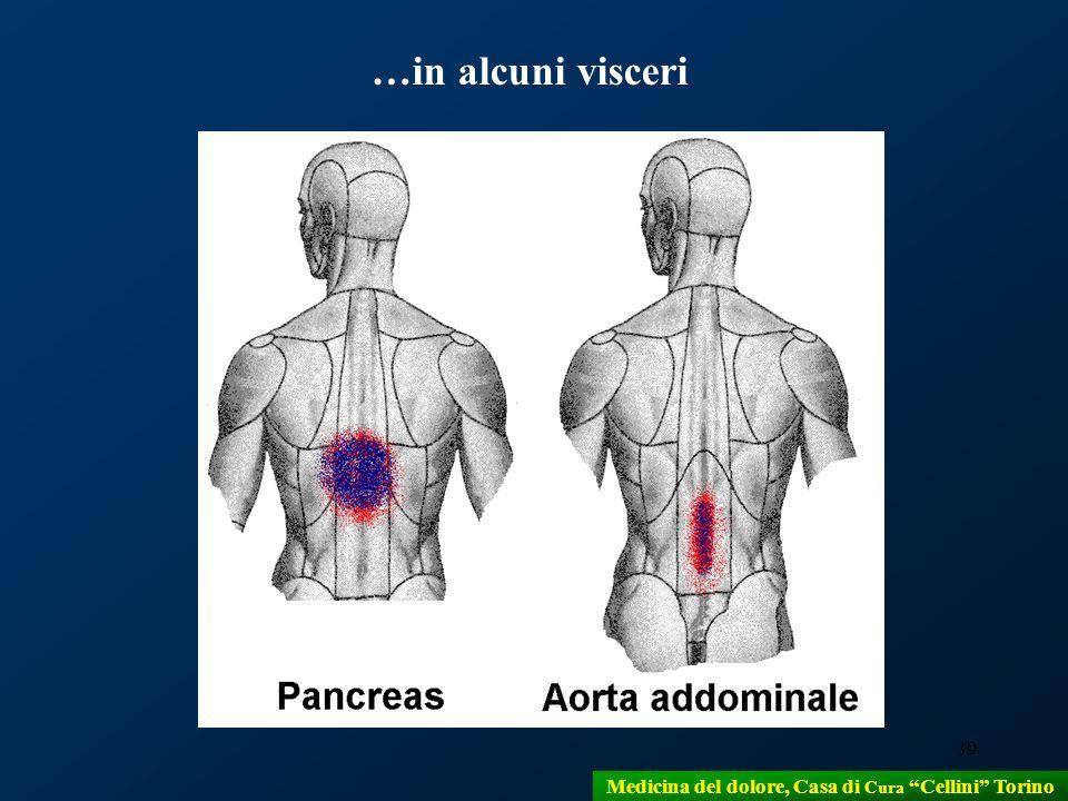 39 …in alcuni visceri Medicina del dolore, Casa di Cura Cellini Torino