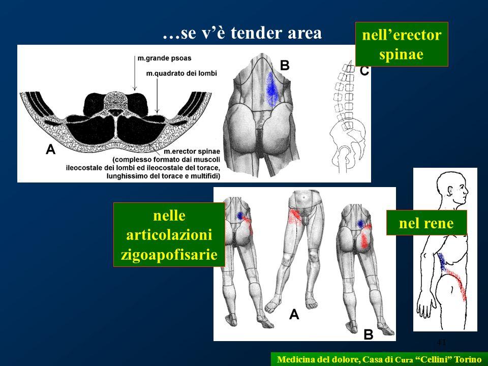41 …se vè tender area nellerector spinae nelle articolazioni zigoapofisarie nel rene Medicina del dolore, Casa di Cura Cellini Torino