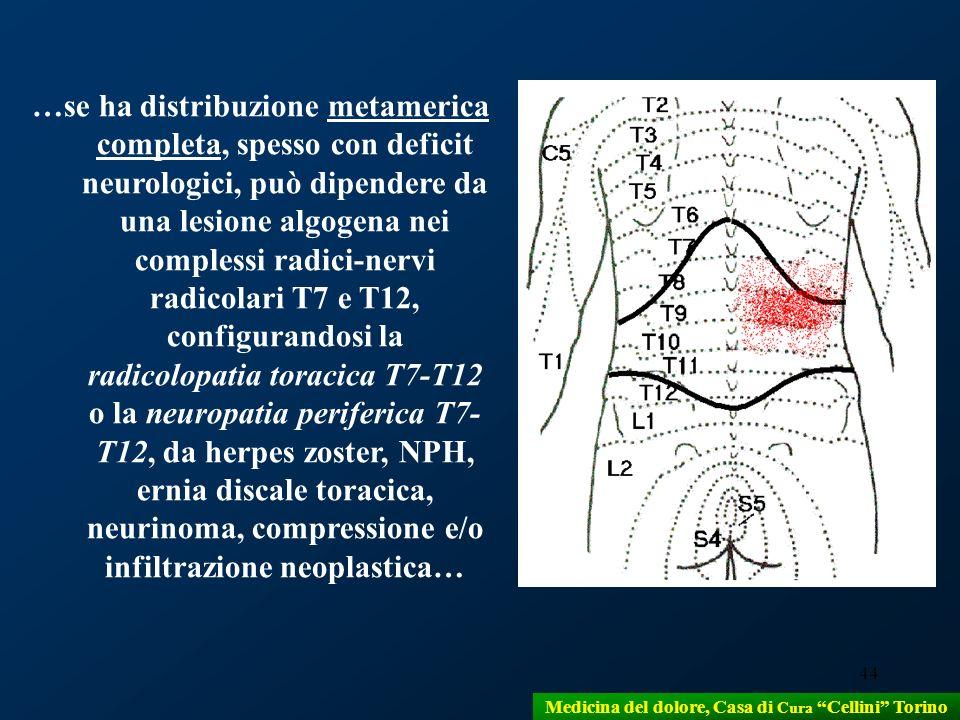 44 …se ha distribuzione metamerica completa, spesso con deficit neurologici, può dipendere da una lesione algogena nei complessi radici-nervi radicola