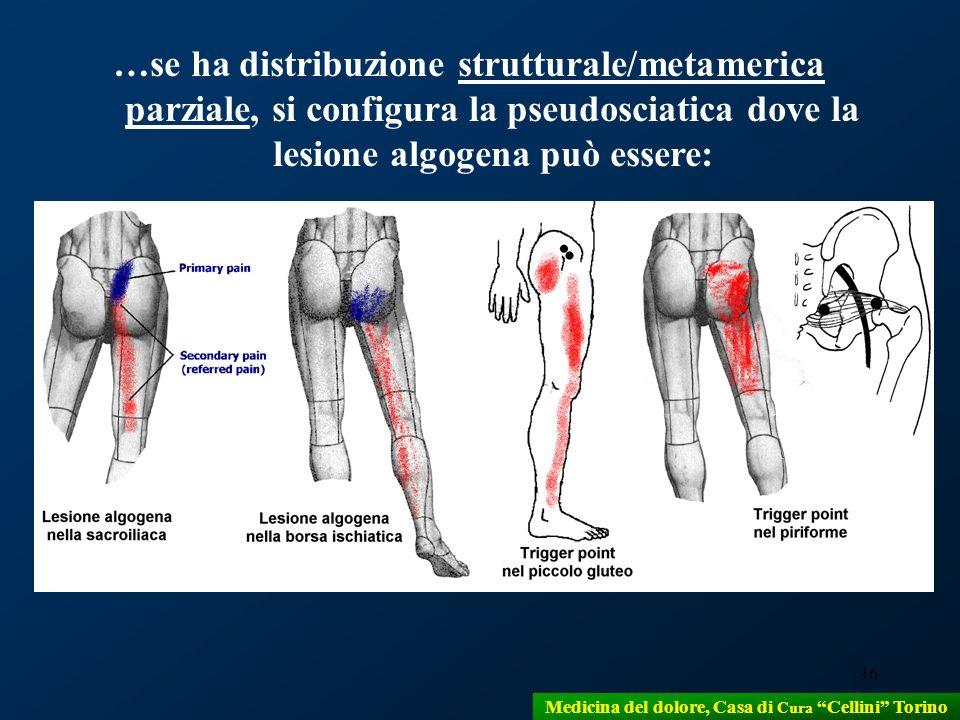 46 …se ha distribuzione strutturale/metamerica parziale, si configura la pseudosciatica dove la lesione algogena può essere: Medicina del dolore, Casa