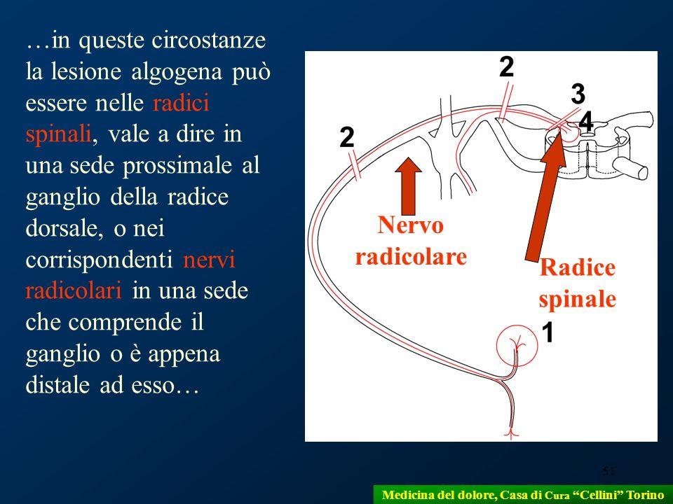 51 …in queste circostanze la lesione algogena può essere nelle radici spinali, vale a dire in una sede prossimale al ganglio della radice dorsale, o n