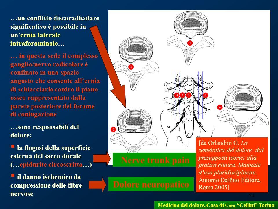 54 …un conflitto discoradicolare significativo è possibile in unernia laterale intraforaminale… … in questa sede il complesso ganglio/nervo radicolare