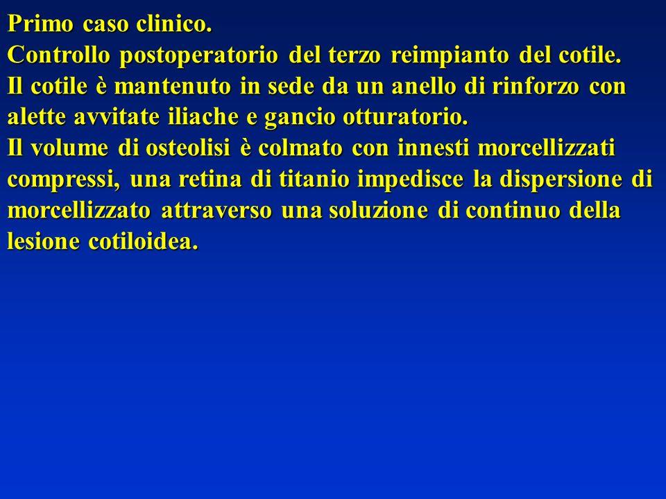 Primo caso clinico.Controllo postoperatorio del terzo reimpianto del cotile.