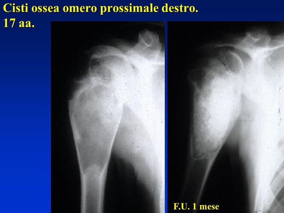 Cisti ossea omero prossimale destro. 17 aa. F.U. 1 mese