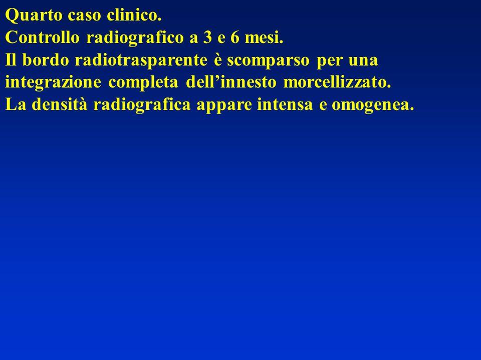 Quarto caso clinico. Controllo radiografico a 3 e 6 mesi. Il bordo radiotrasparente è scomparso per una integrazione completa dellinnesto morcellizzat