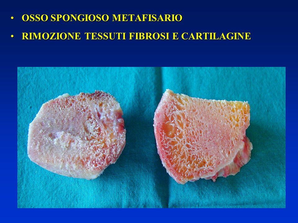 Viene utilizzato osso spongioso omoplastico o, quando possibile, autoplastico.