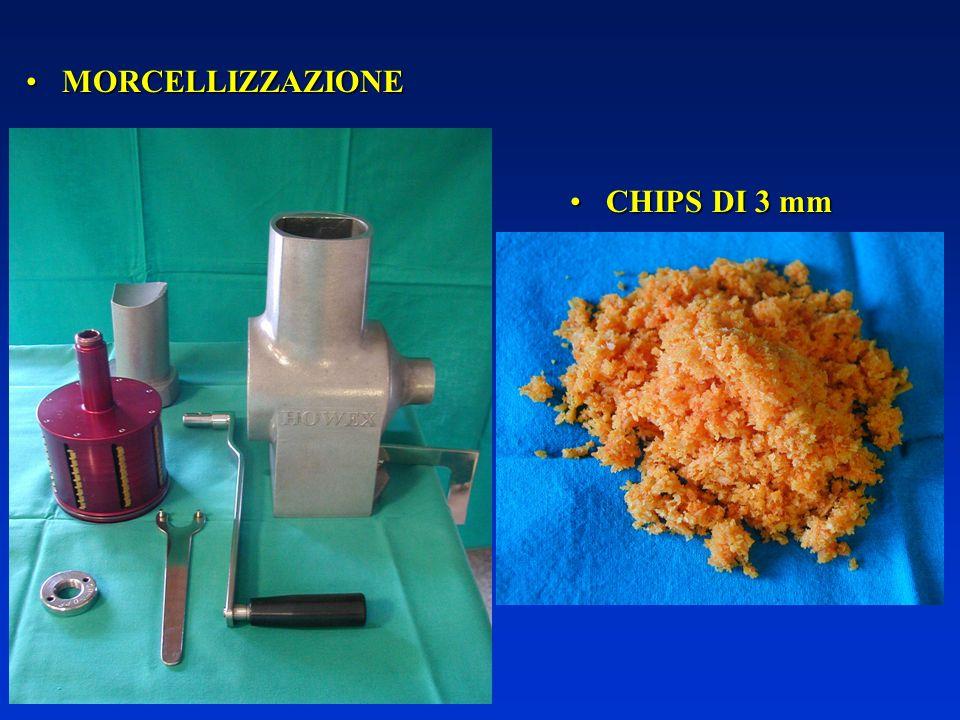 MORCELLIZZAZIONEMORCELLIZZAZIONE CHIPS DI 3 mmCHIPS DI 3 mm