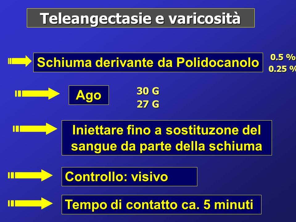 Teleangectasie e varicosità Schiuma derivante da Polidocanolo Ago Iniettare fino a sostituzone del sangue da parte della schiuma Controllo: visivo Tem