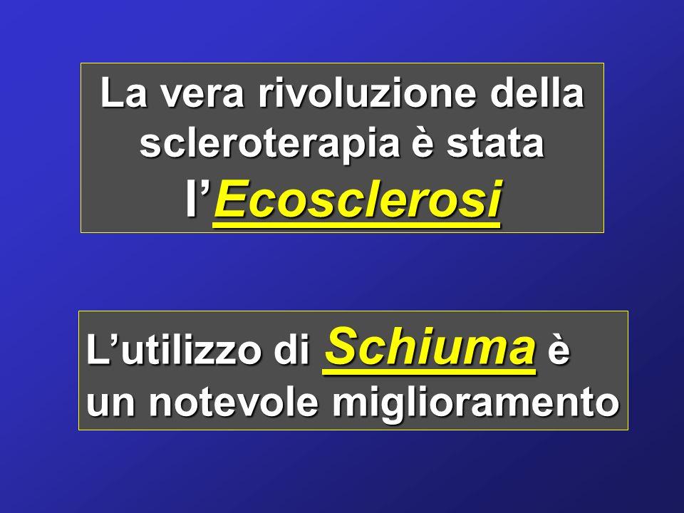 La vera rivoluzione della scleroterapia è stata lEcosclerosi Lutilizzo di Schiuma è un notevole miglioramento