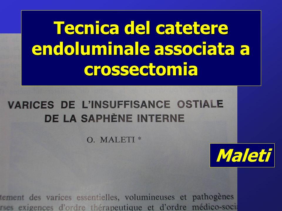 Tecnica del catetere endoluminale associata a crossectomia Maleti