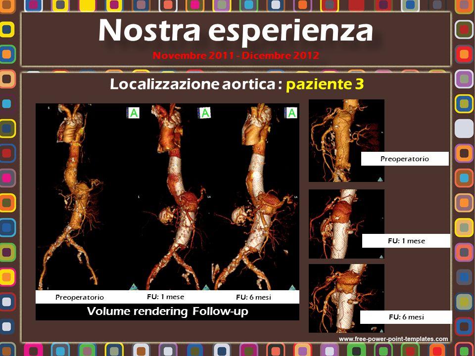 Localizzazione aortica : paziente 3 Nostra esperienza Novembre 2011 - Dicembre 2012 Volume rendering Follow-up Preoperatorio FU: 1 mese FU: 6 mesi Pre