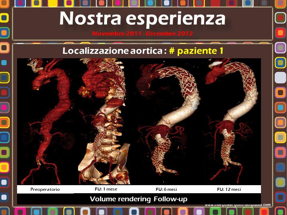 Localizzazione aortica : # paziente 1 Nostra esperienza Novembre 2011 - Dicembre 2012 Volume rendering Follow-up Preoperatorio FU: 1 mese FU: 6 mesi F