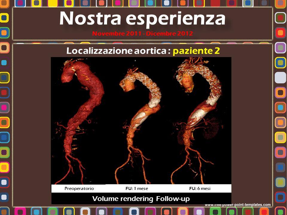 Localizzazione aortica : paziente 2 Nostra esperienza Novembre 2011 - Dicembre 2012 Preoperatorio FU: 1 mese FU: 6 mesi Volume rendering Follow-up