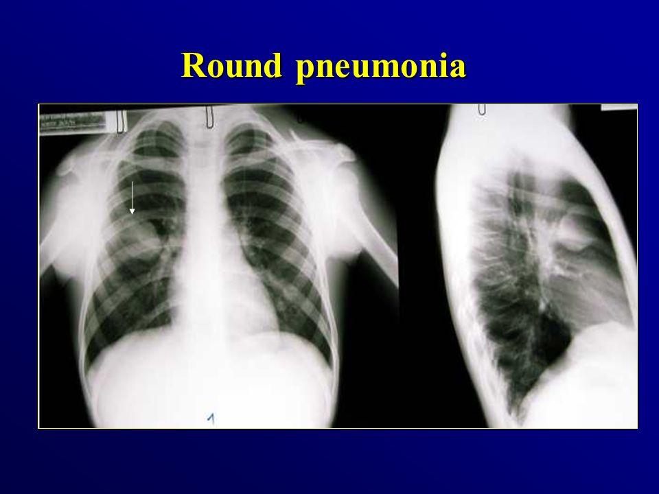 Round pneumonia