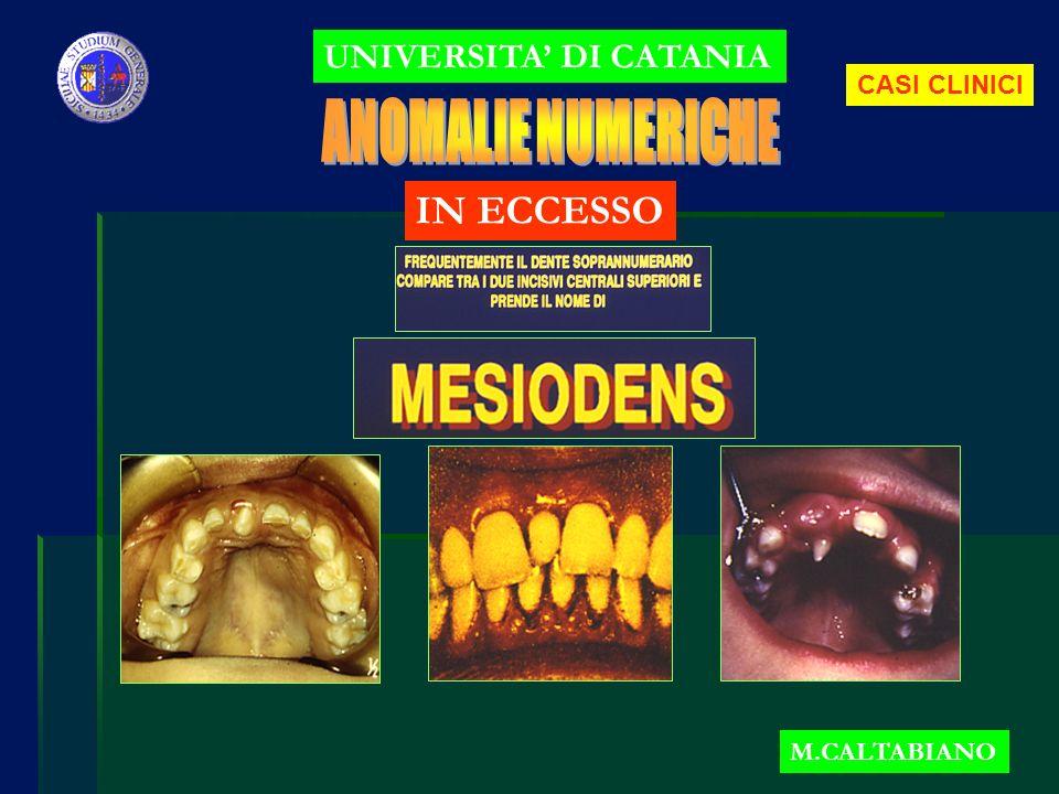 UNIVERSITA DI CATANIA M.CALTABIANO IN ECCESSO CASI CLINICI
