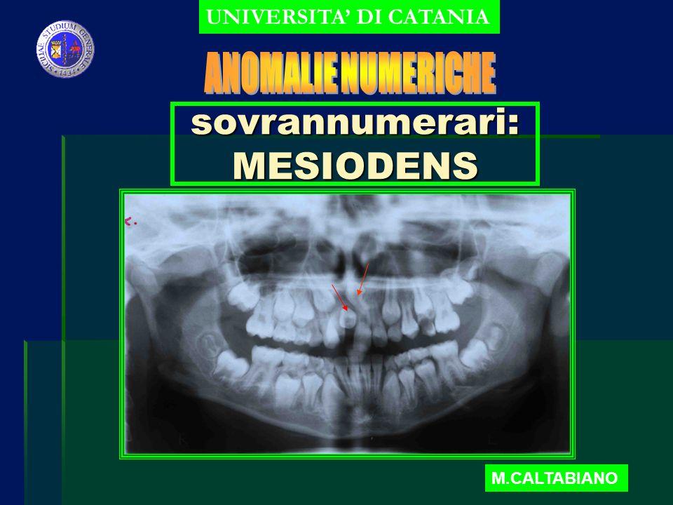 sovrannumerari: MESIODENS UNIVERSITA DI CATANIA M.CALTABIANO