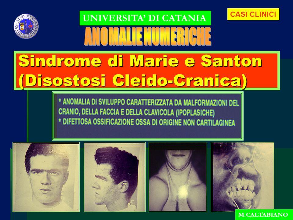 Sindrome di Marie e Santon (Disostosi Cleido-Cranica) UNIVERSITA DI CATANIA M.CALTABIANO CASI CLINICI