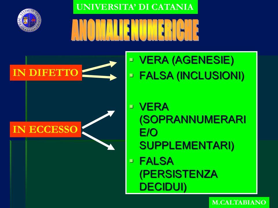 VERA (AGENESIE) VERA (AGENESIE) FALSA (INCLUSIONI) FALSA (INCLUSIONI) VERA (SOPRANNUMERARI E/O SUPPLEMENTARI) VERA (SOPRANNUMERARI E/O SUPPLEMENTARI) FALSA (PERSISTENZA DECIDUI) FALSA (PERSISTENZA DECIDUI) UNIVERSITA DI CATANIA M.CALTABIANO IN DIFETTO IN ECCESSO