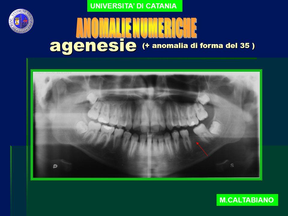 agenesie UNIVERSITA DI CATANIA M.CALTABIANO (+ anomalia di forma del 35 )