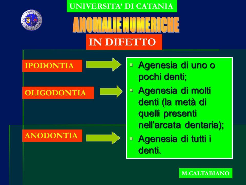 UNIVERSITA DI CATANIA M.CALTABIANO OLIGODONTIA IPODONTIA ANODONTIA Agenesia di uno o pochi denti; Agenesia di uno o pochi denti; Agenesia di molti denti (la metà di quelli presenti nellarcata dentaria); Agenesia di molti denti (la metà di quelli presenti nellarcata dentaria); Agenesia di tutti i denti.