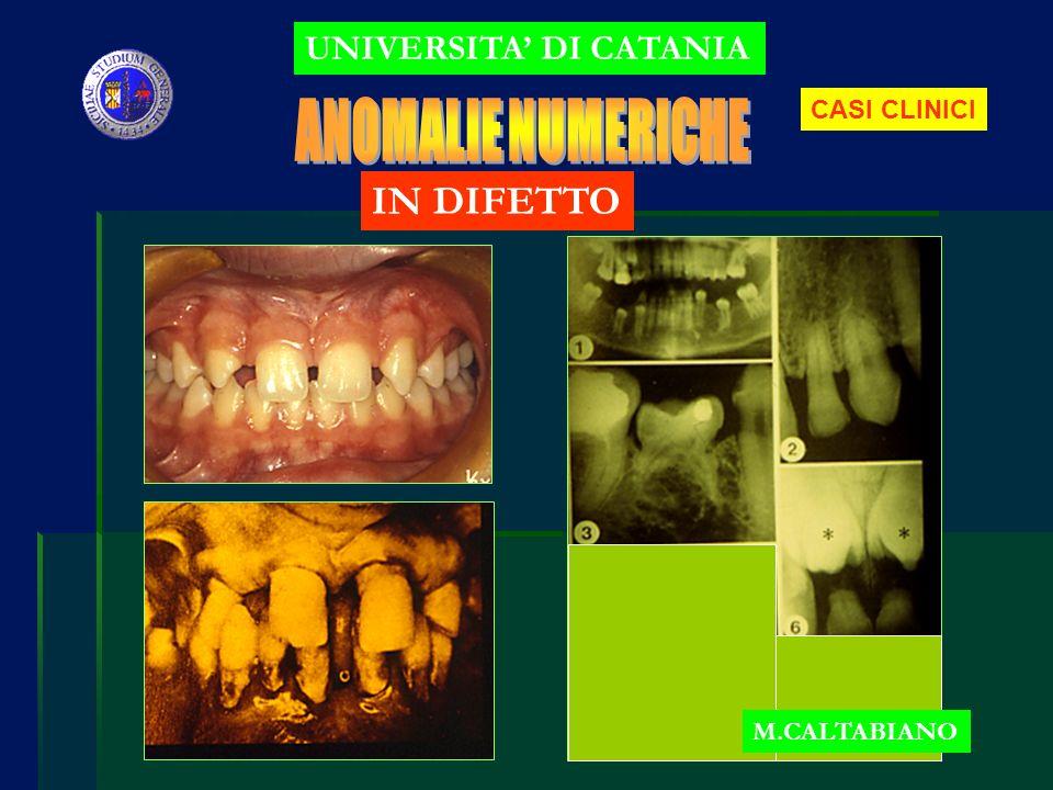 IN DIFETTO false : denti inclusi UNIVERSITA DI CATANIA M.CALTABIANO X grave discrepanza alveolo-dentale + anomalia di forma e volume