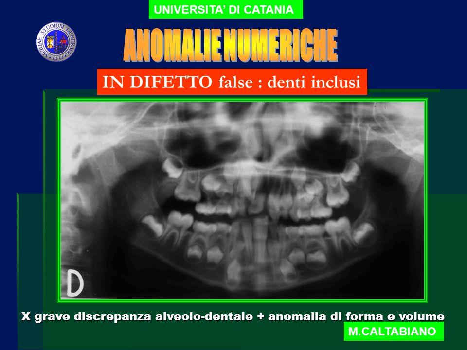 UNIVERSITA DI CATANIA M.CALTABIANO IN DIFETTO Vere : agenesie