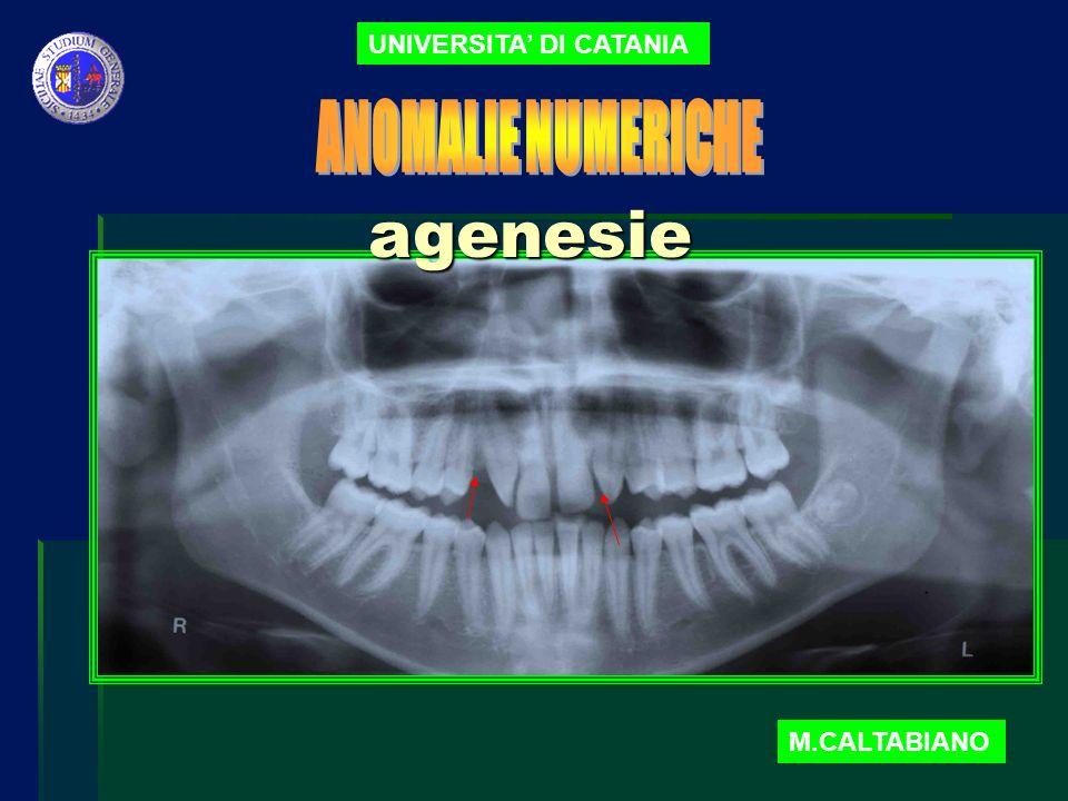 UNIVERSITA DI CATANIA Agenesie M.CALTABIANO