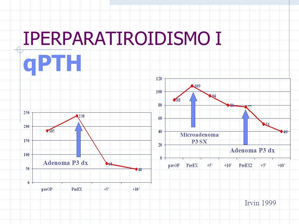 IPERPARATIROIDISMO I qPTH Adenoma P3 dx Irvin 1999 Microadenoma P3 SX Adenoma P3 dx