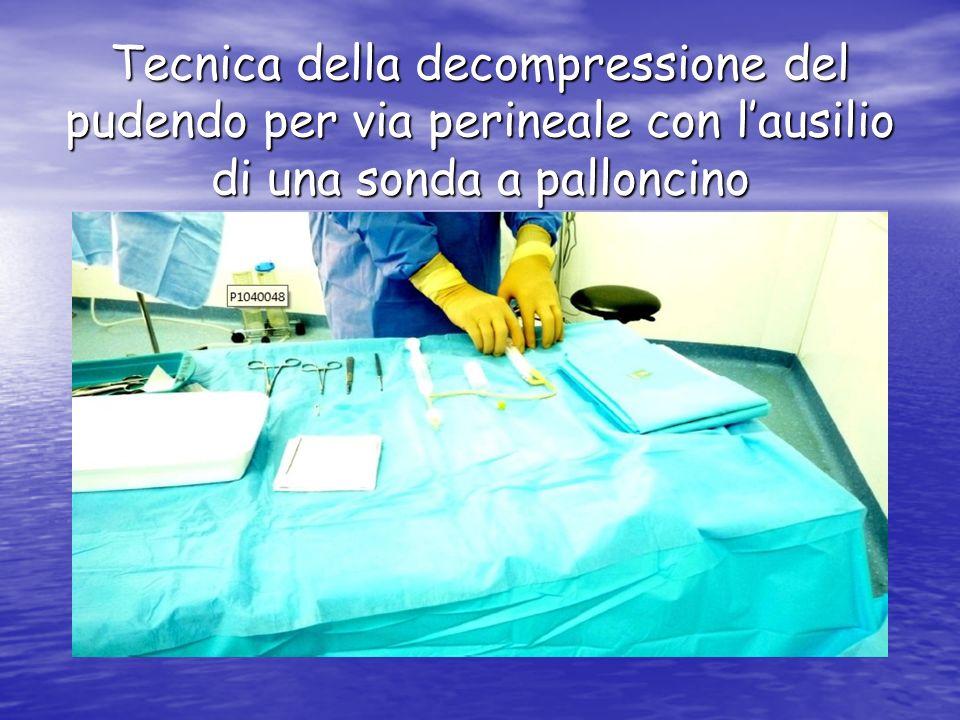 Tecnica della decompressione del pudendo per via perineale con lausilio di una sonda a palloncino