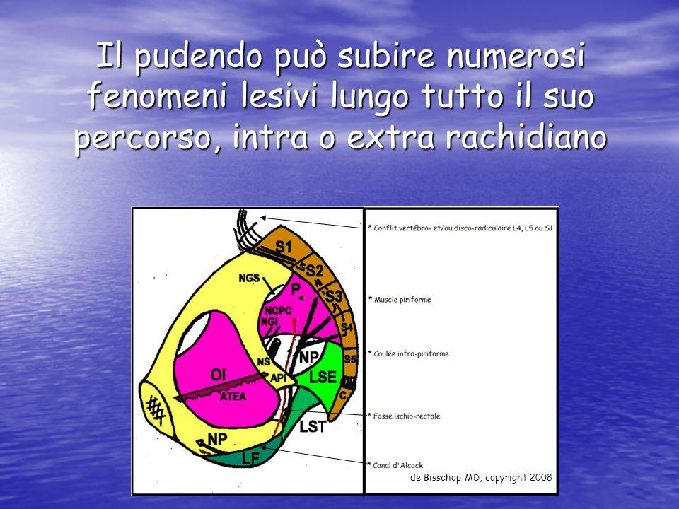 Il pudendo può subire numerosi fenomeni lesivi lungo tutto il suo percorso, intra o extra rachidiano de Bisschop MD, copyright 2008