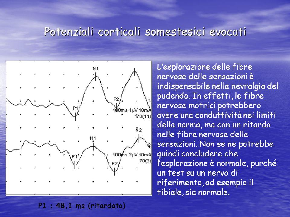 Potenziali corticali somestesici evocati P1 : 48,1 ms (ritardato) Lesplorazione delle fibre nervose delle sensazioni è indispensabile nella nevralgia del pudendo.