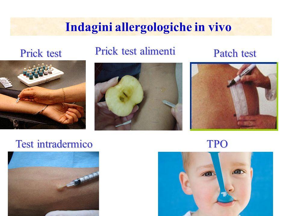 Prick & Storia Clinica Positivi Entrambi Prick & Storia Clinica Negativi Entrambi Prick & Storia Clinica Controversi Prick test e allergia respiratoria