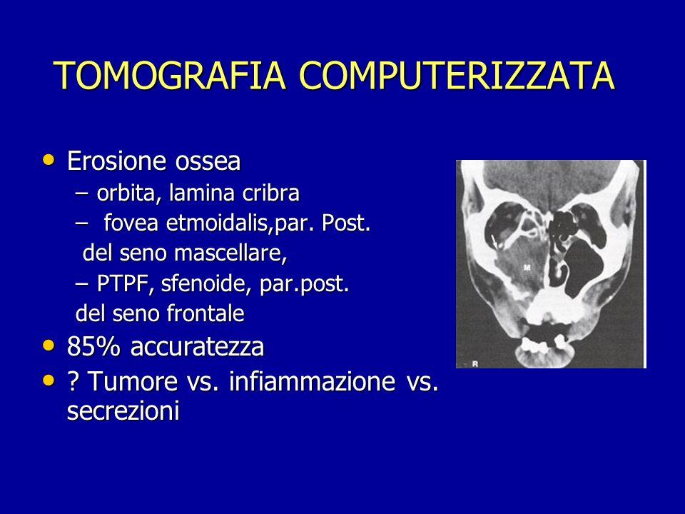 TOMOGRAFIA COMPUTERIZZATA TOMOGRAFIA COMPUTERIZZATA Erosione ossea Erosione ossea –orbita, lamina cribra – fovea etmoidalis,par. Post. del seno mascel