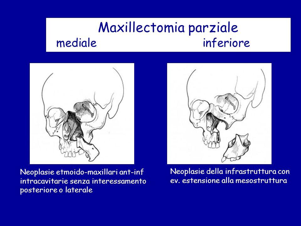 Maxillectomia parziale mediale inferiore Neoplasie etmoido-maxillari ant-inf intracavitarie senza interessamento posteriore o laterale Neoplasie della