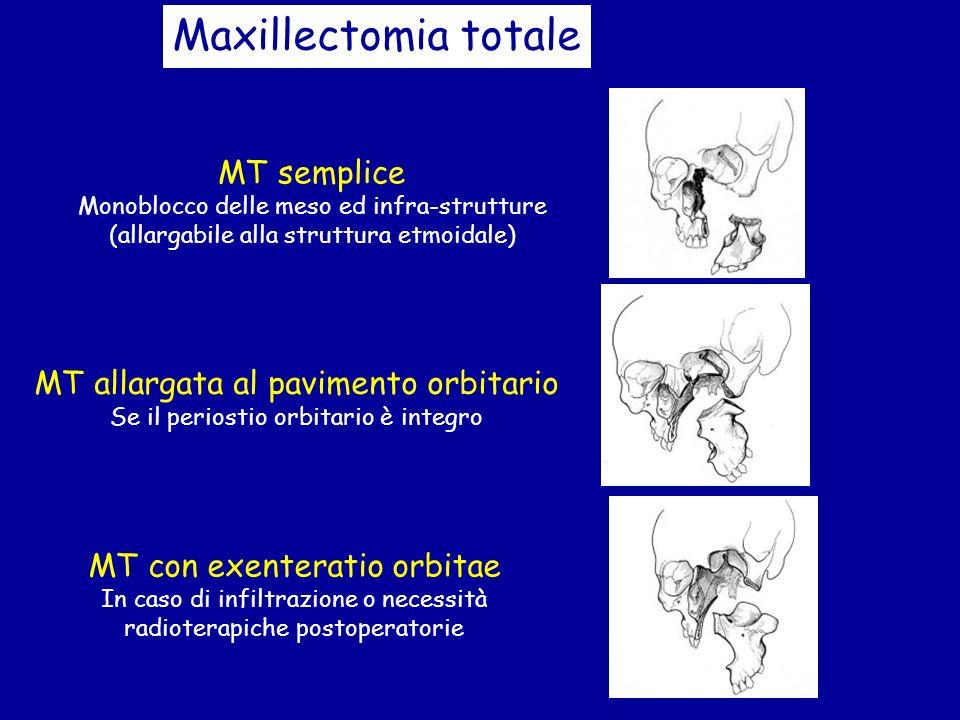 Maxillectomia totale MT semplice Monoblocco delle meso ed infra-strutture (allargabile alla struttura etmoidale) MT allargata al pavimento orbitario S