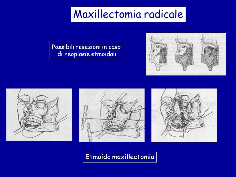 Maxillectomia radicale Possibili resezioni in caso di neoplasie etmoidali Etmoido maxillectomia