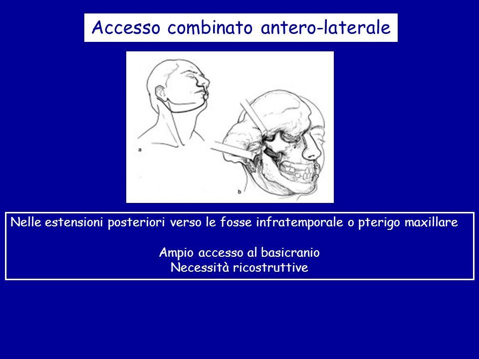 Accesso combinato antero-laterale Nelle estensioni posteriori verso le fosse infratemporale o pterigo maxillare Ampio accesso al basicranio Necessità
