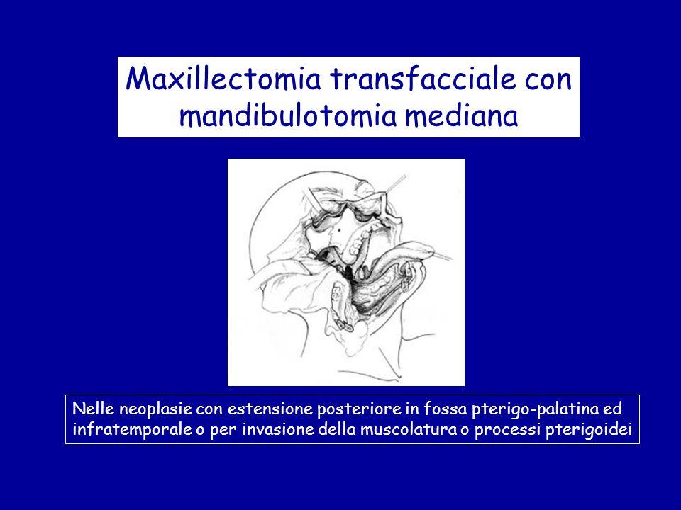 Maxillectomia transfacciale con mandibulotomia mediana Nelle neoplasie con estensione posteriore in fossa pterigo-palatina ed infratemporale o per inv