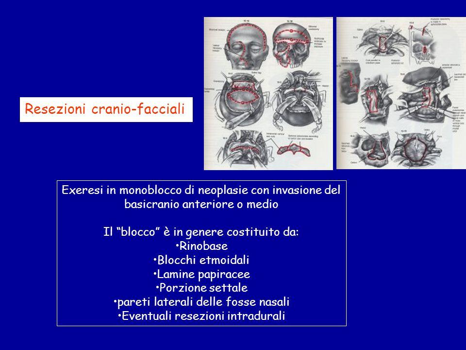 Resezioni cranio-facciali Exeresi in monoblocco di neoplasie con invasione del basicranio anteriore o medio Il blocco è in genere costituito da: Rinob