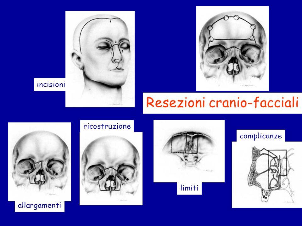 Resezioni cranio-facciali incisioni allargamenti limiti ricostruzione complicanze