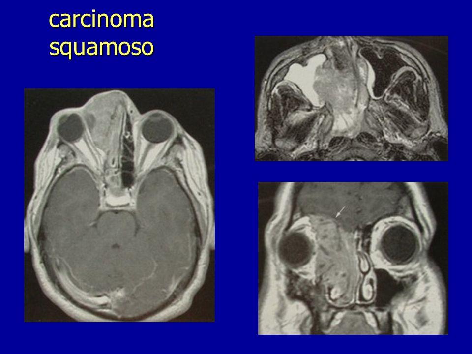 carcinoma squamoso