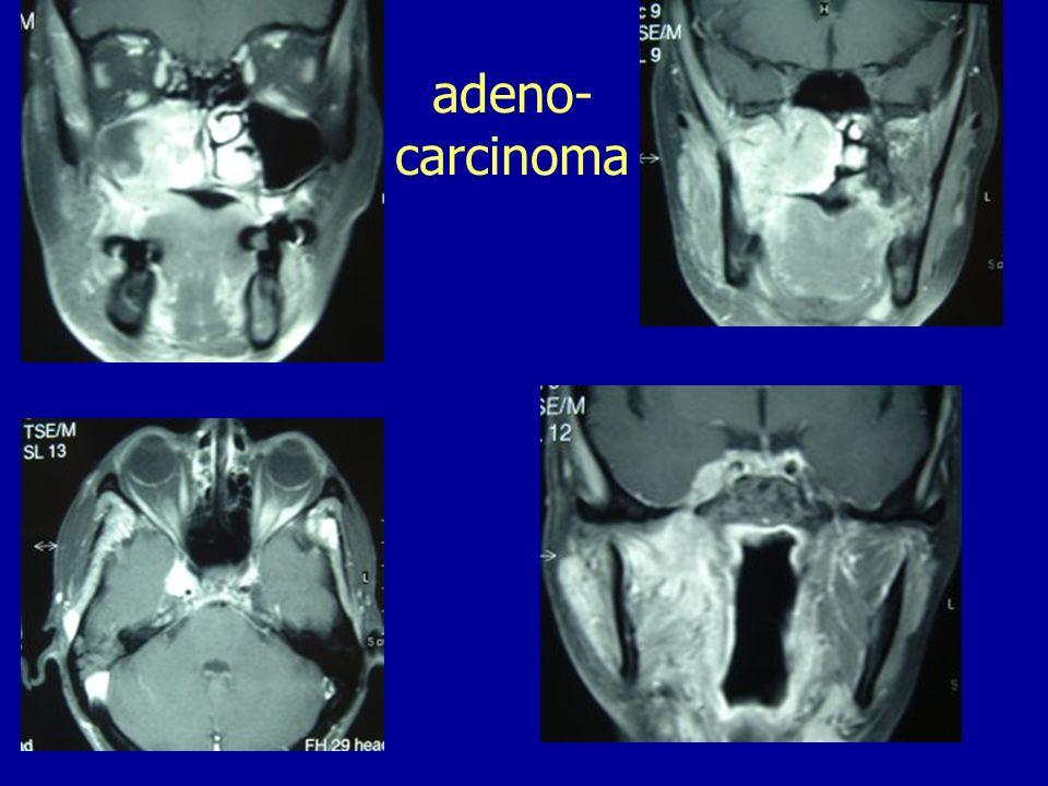 adeno- carcinoma