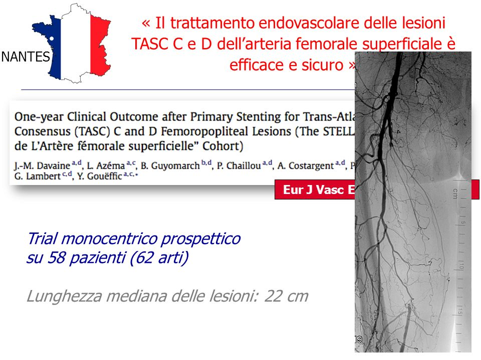 « Il trattamento endovascolare delle lesioni TASC C e D dellarteria femorale superficiale è efficace e sicuro » NANTES Eur J Vasc Endovasc Surg 2012 T