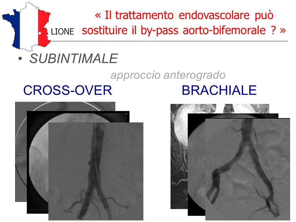 SUBINTIMALE approccio anterogrado « Il trattamento endovascolare può sostituire il by-pass aorto-bifemorale ? » LIONE CROSS-OVERBRACHIALE
