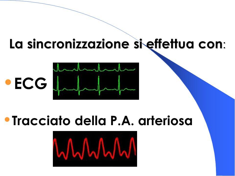 La sincronizzazione si effettua con : ECG Tracciato della P.A. arteriosa