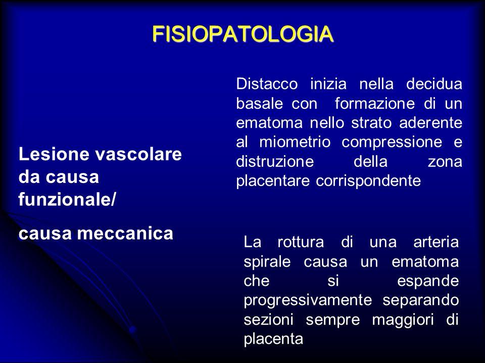 FISIOPATOLOGIA Lesione vascolare da causa funzionale/ causa meccanica Distacco inizia nella decidua basale con formazione di un ematoma nello strato a