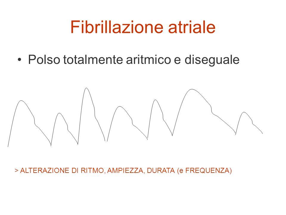 Fibrillazione atriale Polso totalmente aritmico e diseguale > ALTERAZIONE DI RITMO, AMPIEZZA, DURATA (e FREQUENZA)
